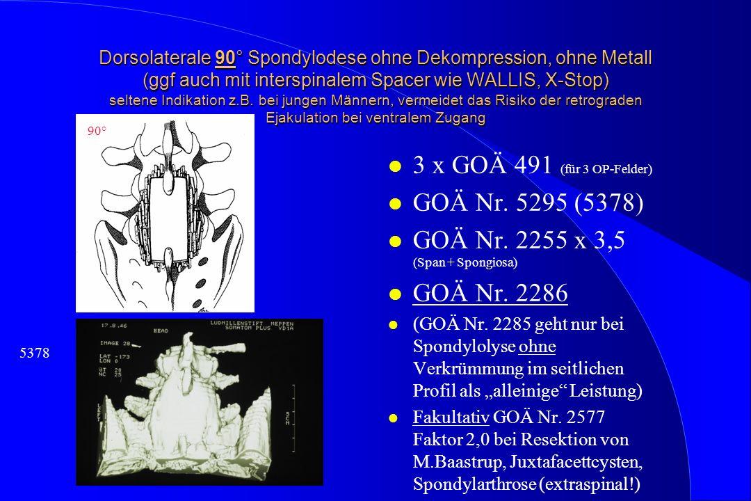 GOÄ Nr. 2255 x 3,5 (Span + Spongiosa) GOÄ Nr. 2286