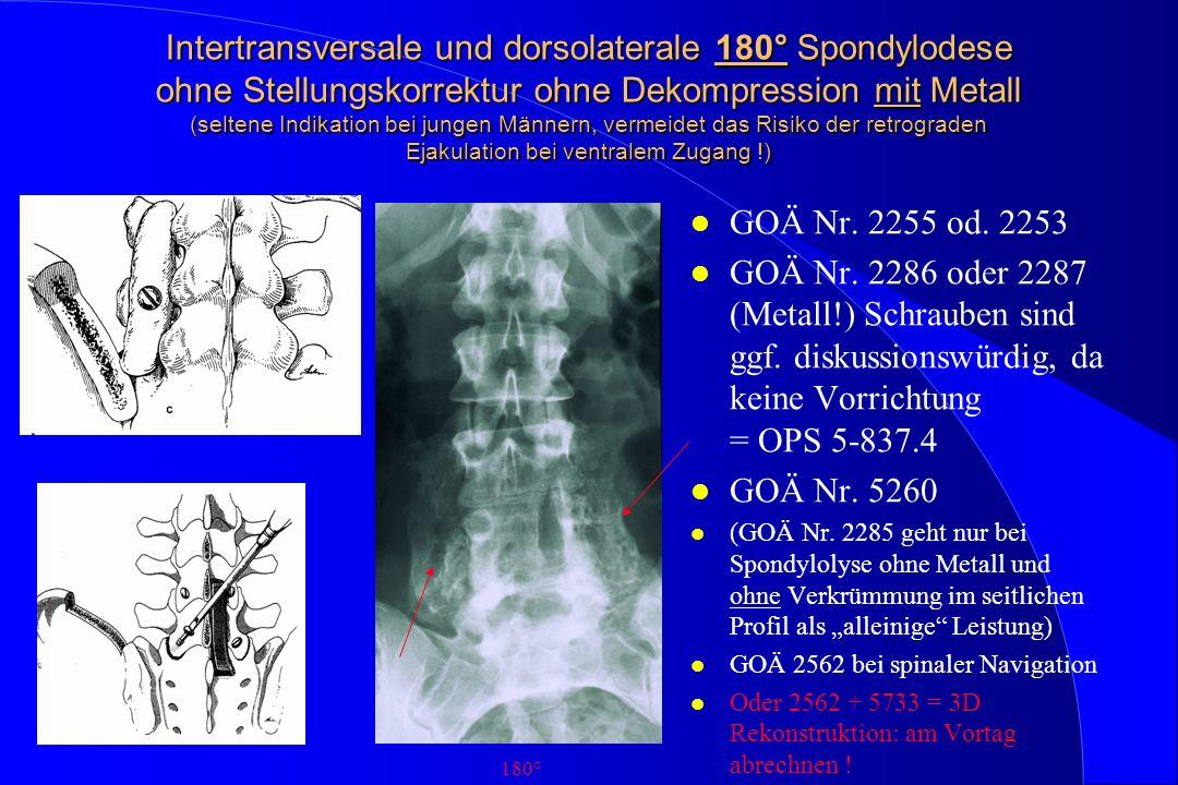 Intertransversale und dorsolaterale 180° Spondylodese ohne Stellungskorrektur ohne Dekompression mit Metall (seltene Indikation bei jungen Männern, vermeidet das Risiko der retrograden Ejakulation bei ventralem Zugang !)