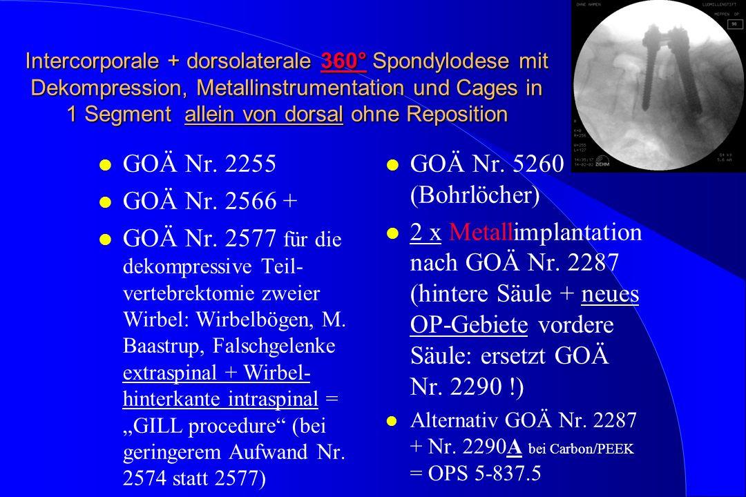 Intercorporale + dorsolaterale 360° Spondylodese mit Dekompression, Metallinstrumentation und Cages in 1 Segment allein von dorsal ohne Reposition