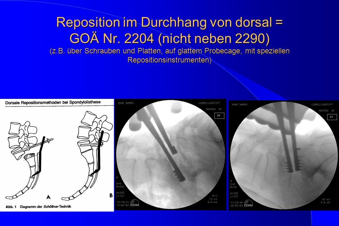 Reposition im Durchhang von dorsal = GOÄ Nr. 2204 (nicht neben 2290) (z.B.