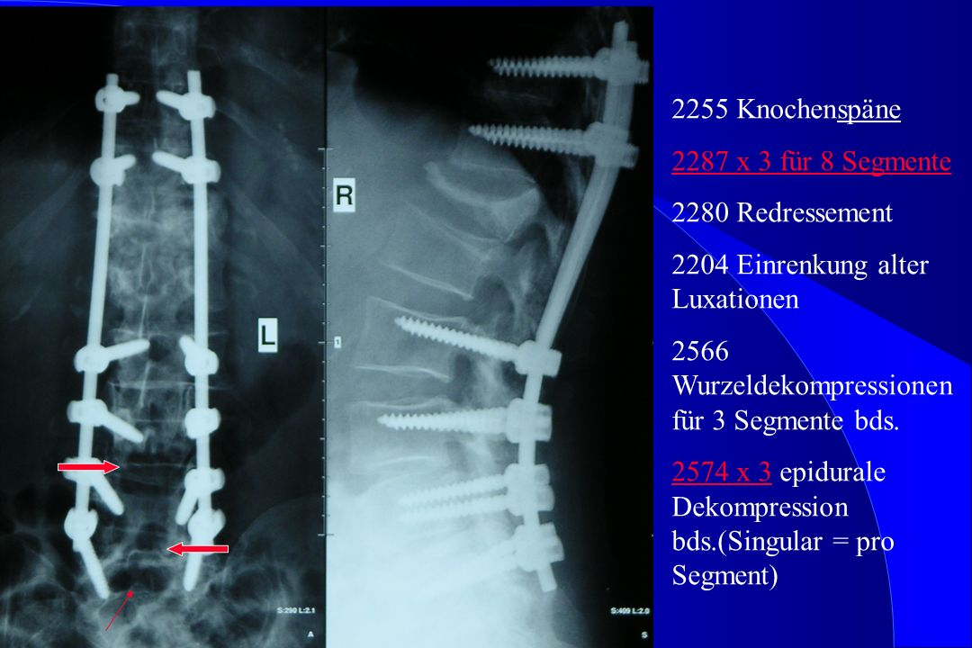 2255 Knochenspäne 2287 x 3 für 8 Segmente. 2280 Redressement. 2204 Einrenkung alter Luxationen. 2566 Wurzeldekompressionen für 3 Segmente bds.
