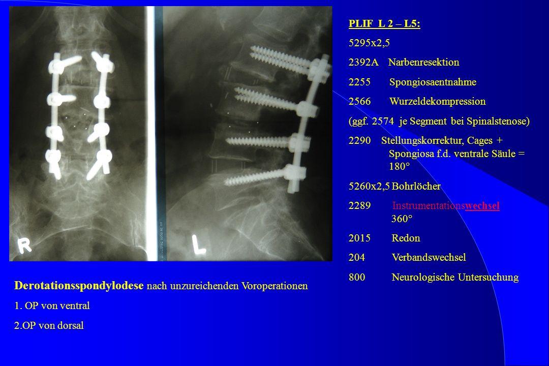 Derotationsspondylodese nach unzureichenden Voroperationen