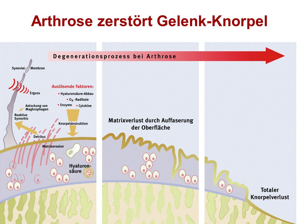 Arthrose zerstört Gelenk-Knorpel