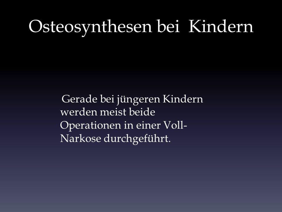 Osteosynthesen bei Kindern