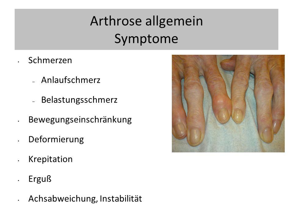Arthrose allgemein Symptome
