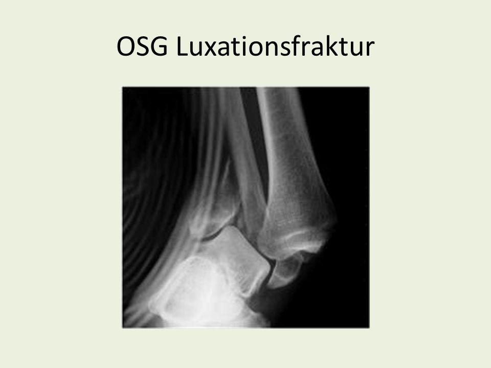 OSG Luxationsfraktur
