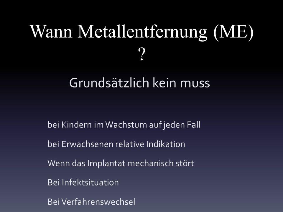 Wann Metallentfernung (ME)