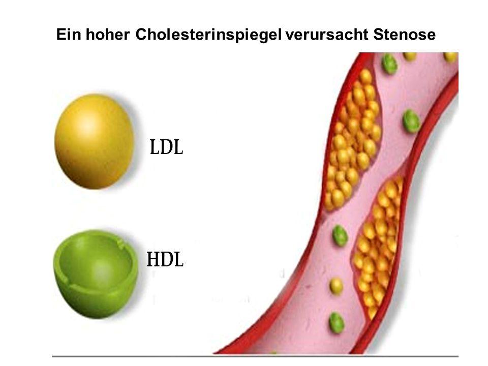 Ein hoher Cholesterinspiegel verursacht Stenose
