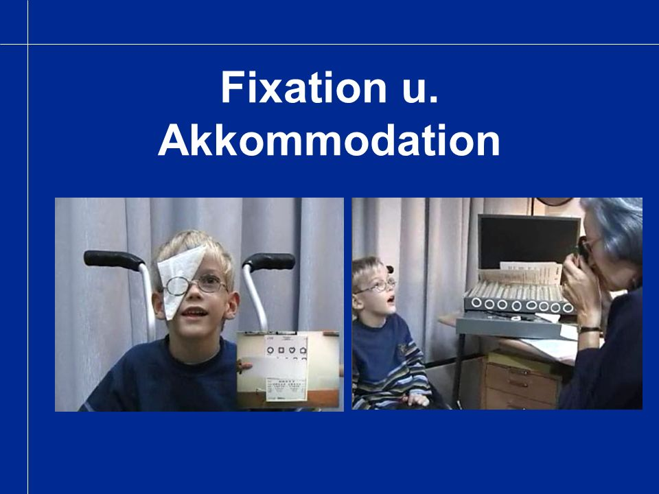 Fixation u. Akkommodation