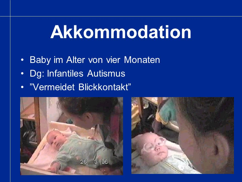 Akkommodation Baby im Alter von vier Monaten Dg: Infantiles Autismus