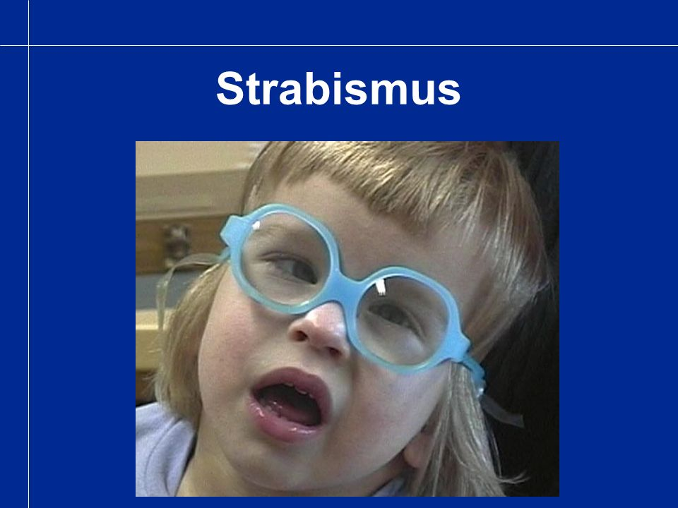 Strabismus