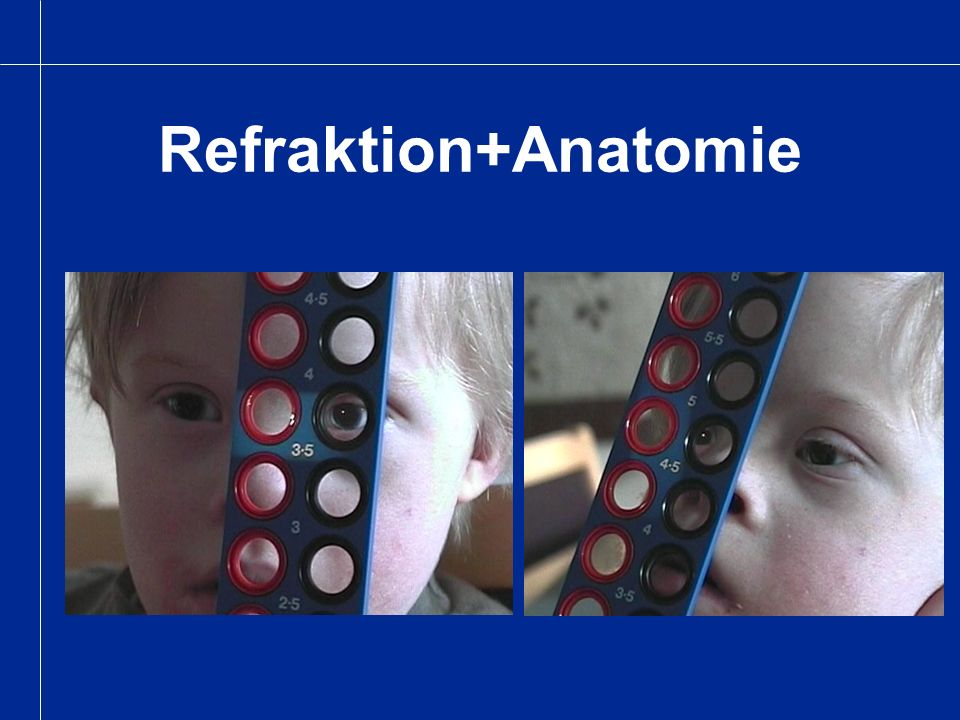 Refraktion+Anatomie
