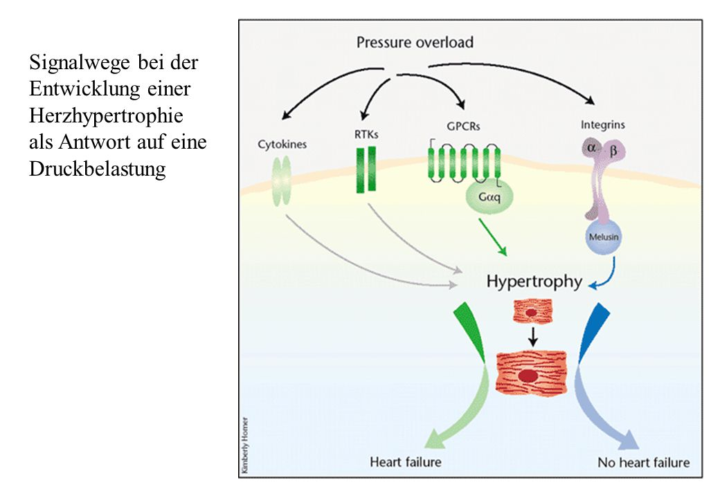 Signalwege bei der Entwicklung einer Herzhypertrophie als Antwort auf eine Druckbelastung