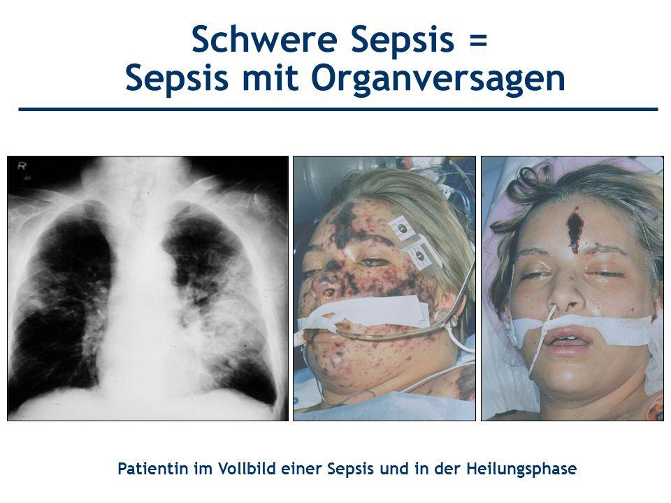Schwere Sepsis = Sepsis mit Organversagen