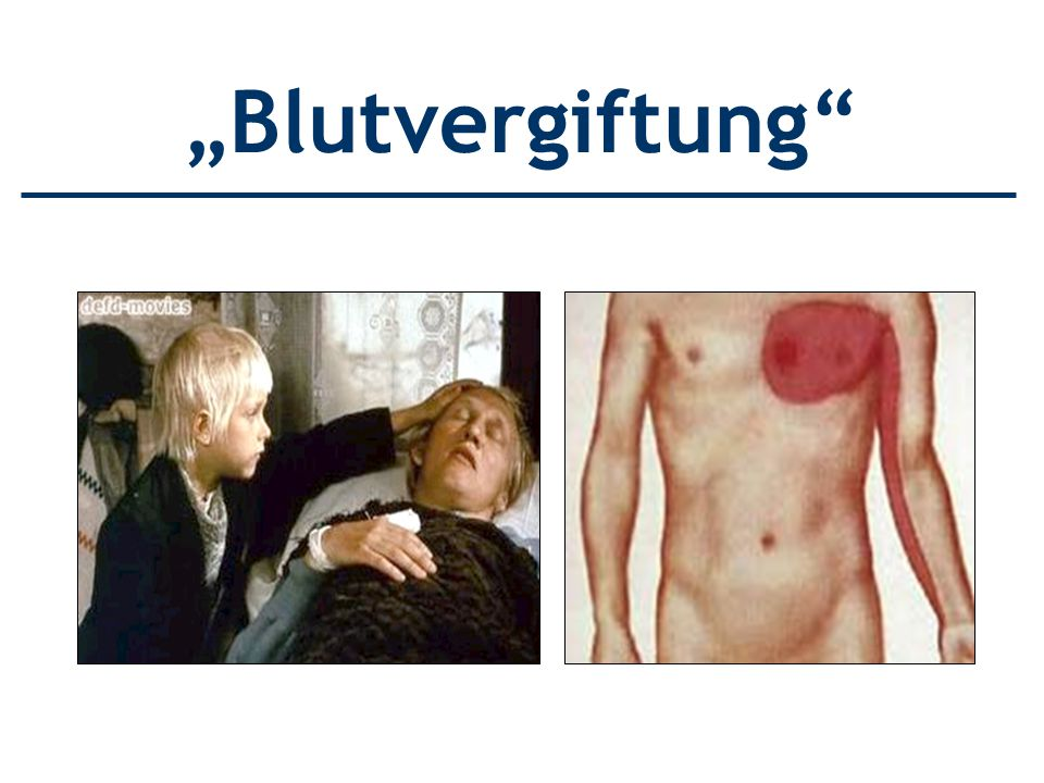 """Blutvergiftung"
