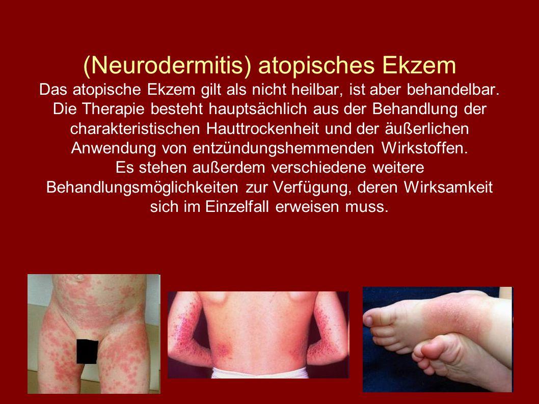 (Neurodermitis) atopisches Ekzem Das atopische Ekzem gilt als nicht heilbar, ist aber behandelbar.