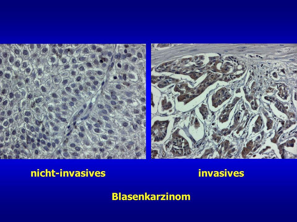 nicht-invasives invasives