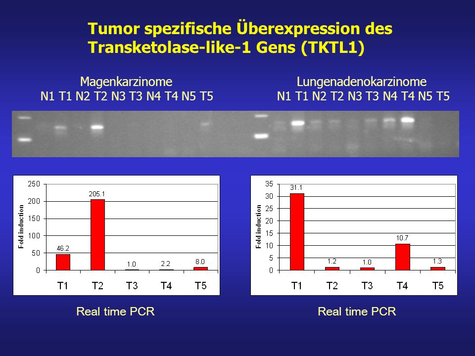 Tumor spezifische Überexpression des Transketolase-like-1 Gens (TKTL1)