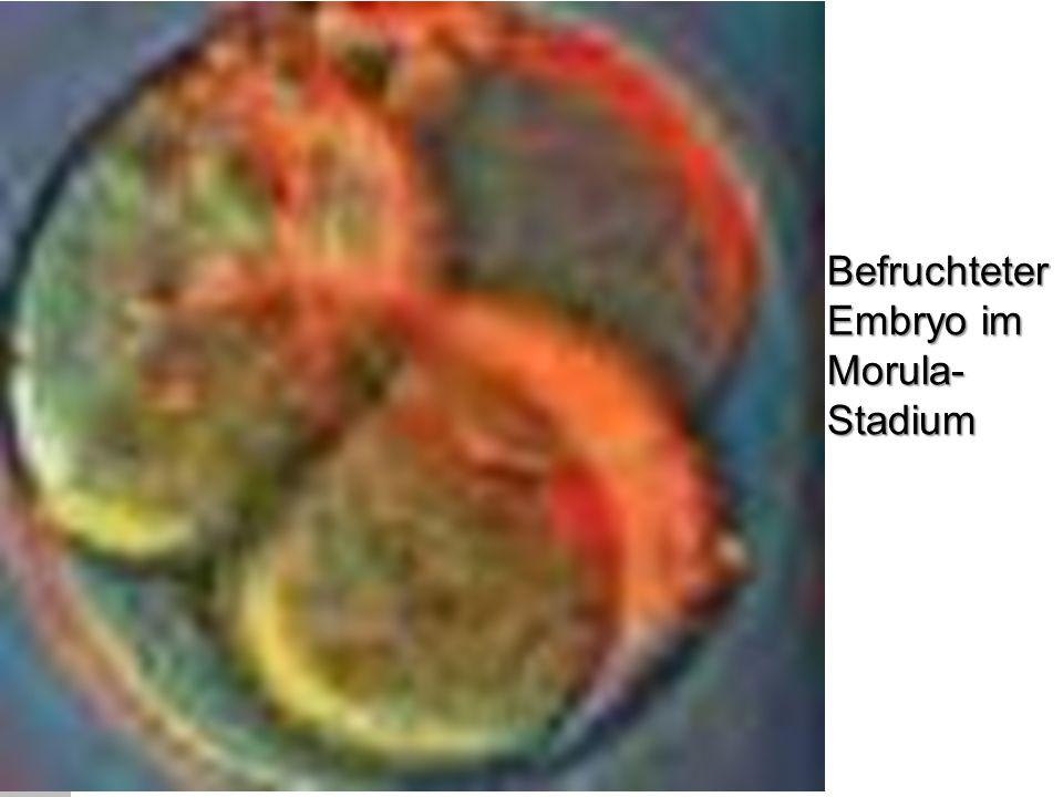 Befruchteter Embryo im Morula- Stadium