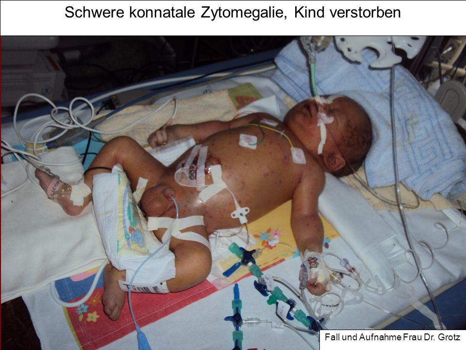 Schwere konnatale Zytomegalie, Kind verstorben