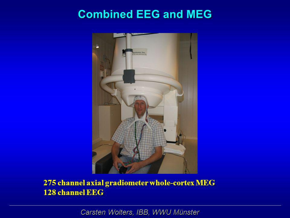 Combined EEG and MEG 275 channel axial gradiometer whole-cortex MEG