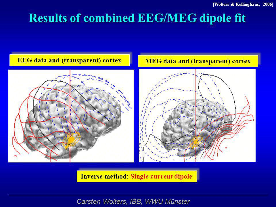 Results of combined EEG/MEG dipole fit