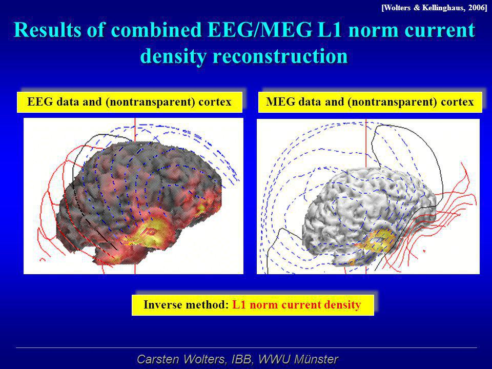 Results of combined EEG/MEG L1 norm current density reconstruction
