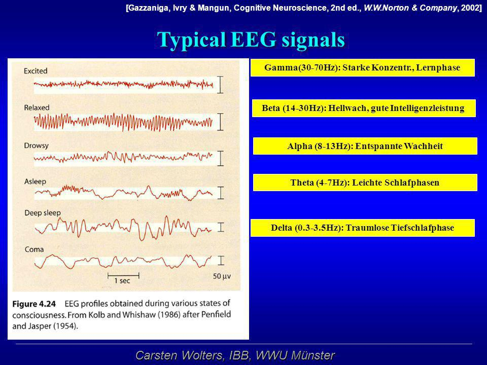 Typical EEG signals Gamma(30-70Hz): Starke Konzentr., Lernphase