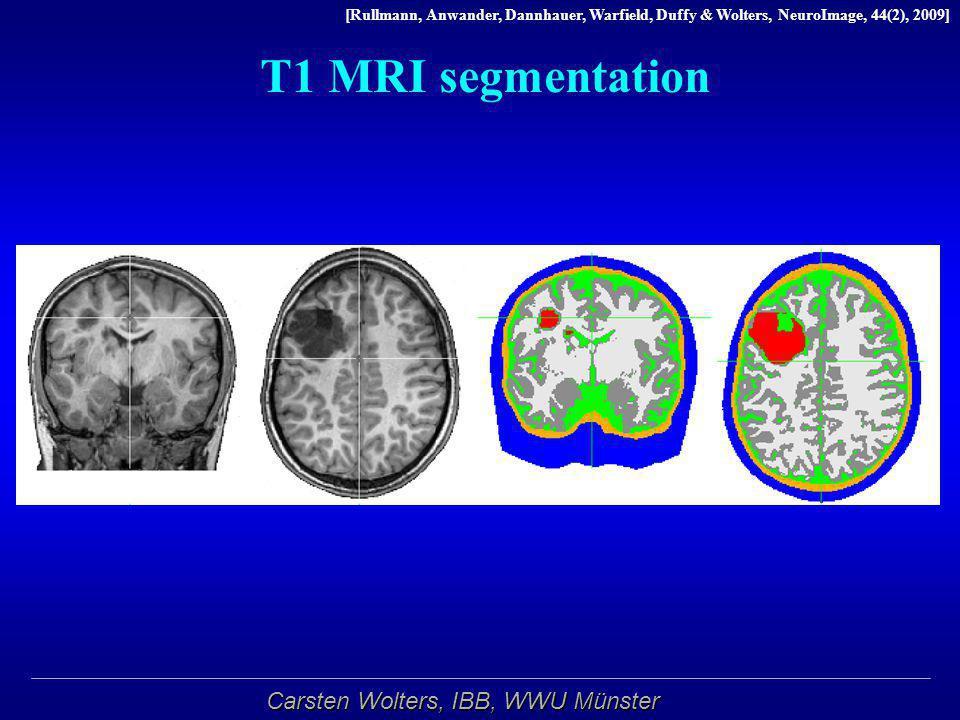 T1 MRI segmentation Segmentierung per Hand angepasst