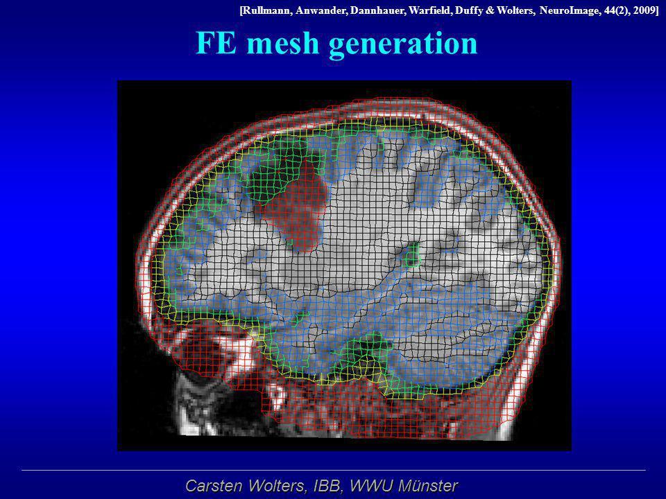 FE mesh generation Segmentierung per Hand angepasst
