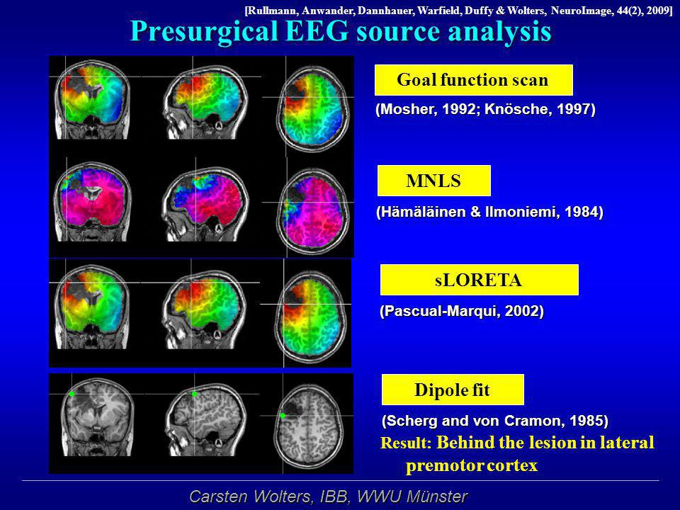 Presurgical EEG source analysis