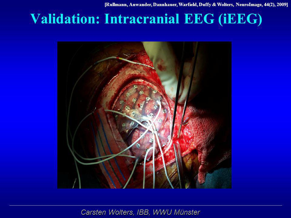 Validation: Intracranial EEG (iEEG)