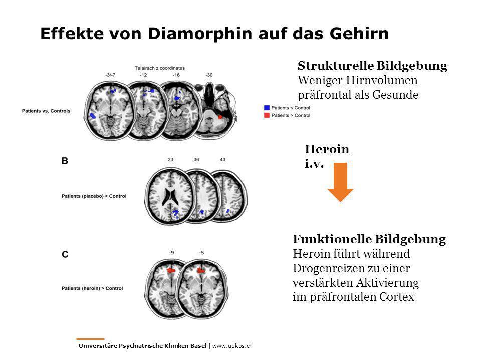 Effekte von Diamorphin auf das Gehirn