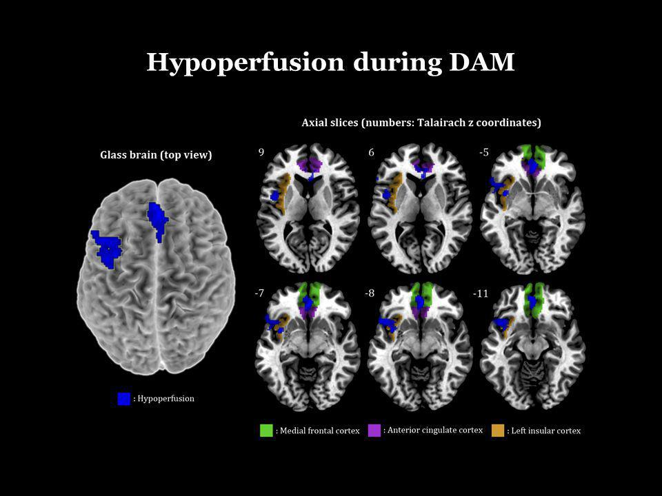Hypoperfusion during DAM