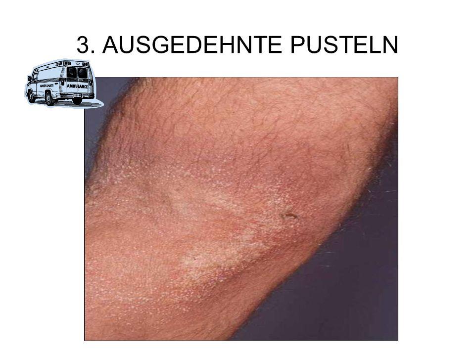3. AUSGEDEHNTE PUSTELN