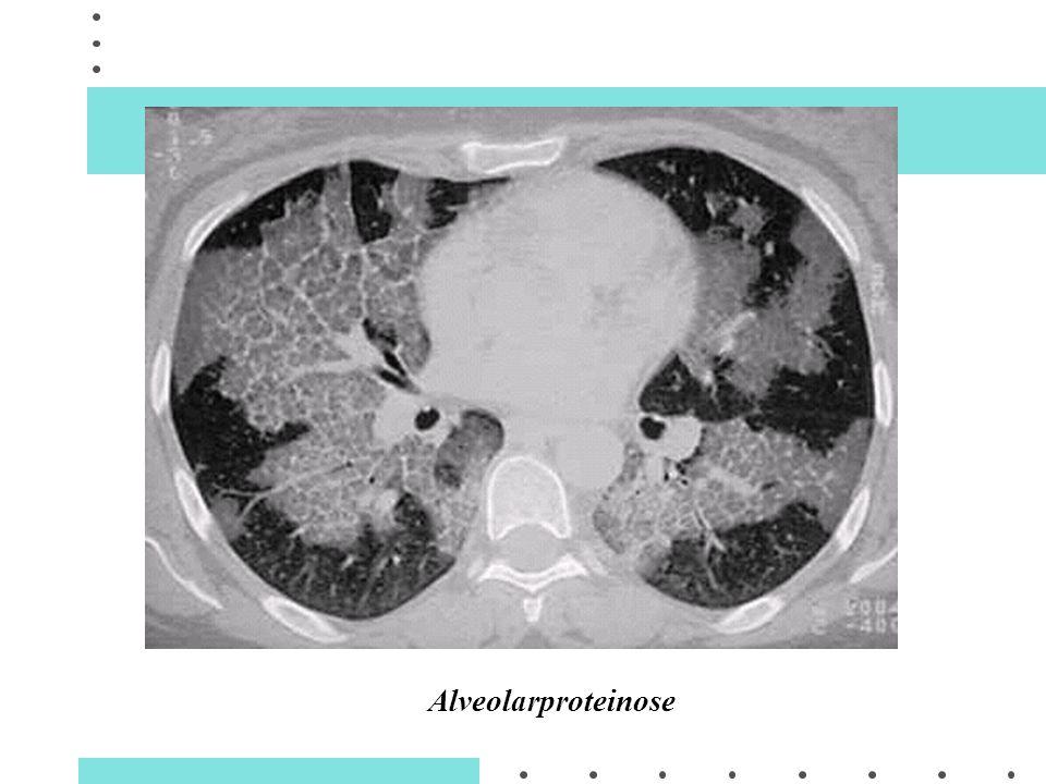 Alveolarproteinose