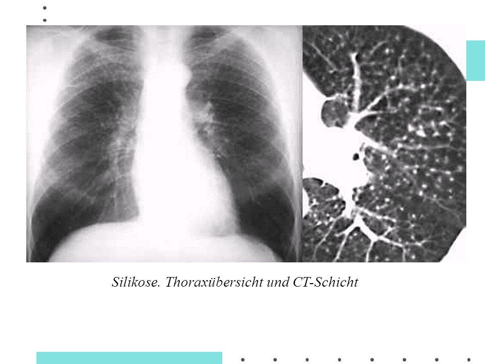 Silikose. Thoraxübersicht und CT-Schicht