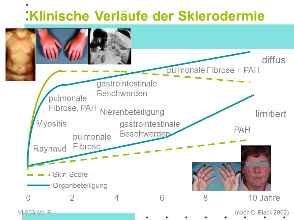 Klinische Verläufe der Sklerodermie