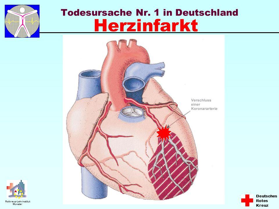 Todesursache Nr. 1 in Deutschland
