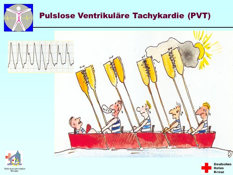Pulslose Ventrikuläre Tachykardie (PVT)