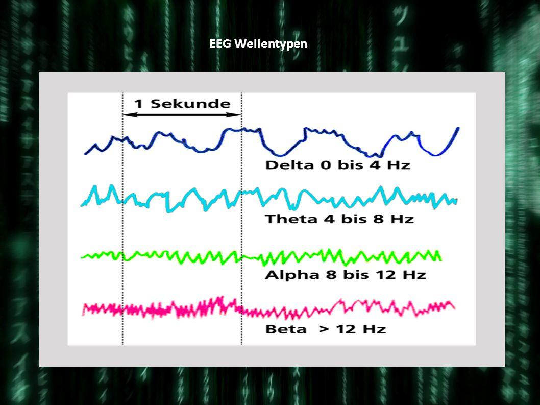 EEG Wellentypen