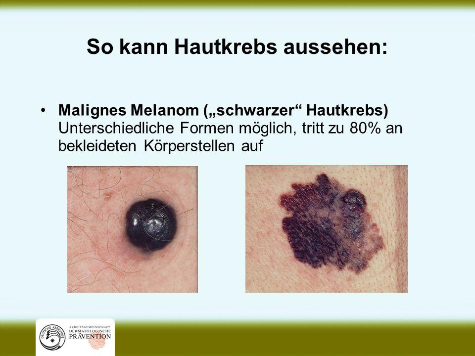 So kann Hautkrebs aussehen: