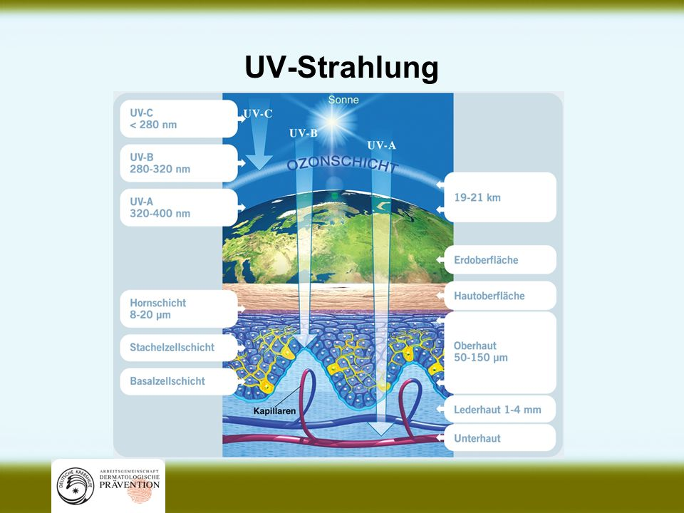 UV-Strahlung