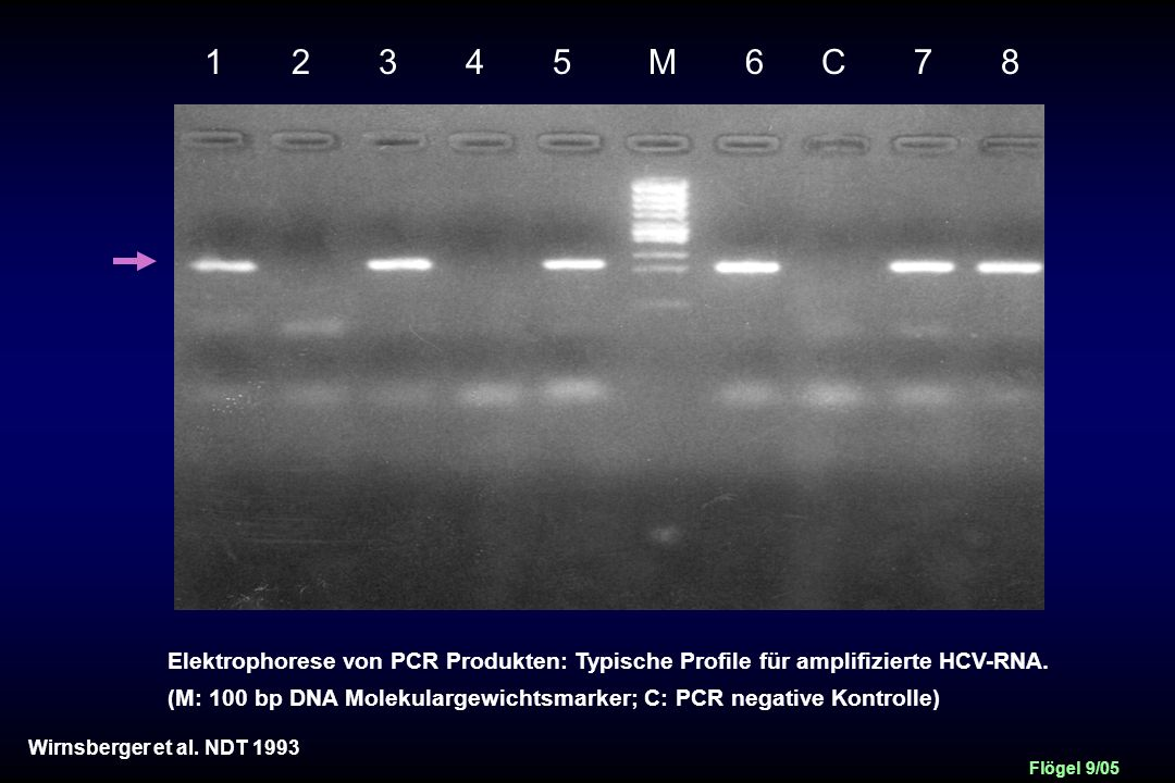 1 2 3 4 5 M 6 C 7 8 Elektrophorese von PCR Produkten: Typische Profile für amplifizierte HCV-RNA.