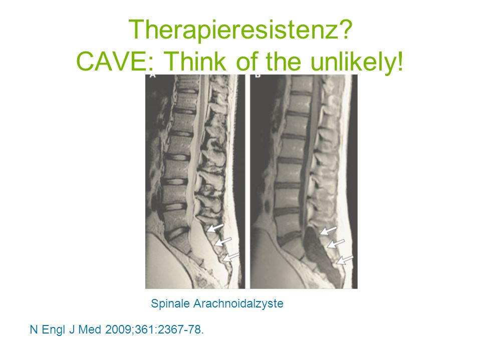 Therapieresistenz CAVE: Think of the unlikely!