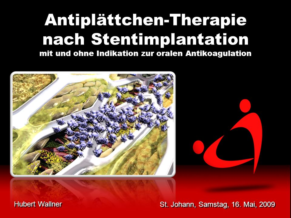 Antiplättchen-Therapie nach Stentimplantation mit und ohne Indikation zur oralen Antikoagulation