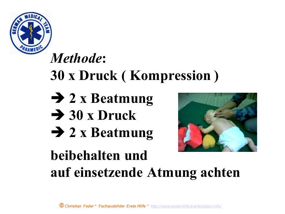 Methode: 30 x Druck ( Kompression )  2 x Beatmung  30 x Druck  2 x Beatmung beibehalten und auf einsetzende Atmung achten