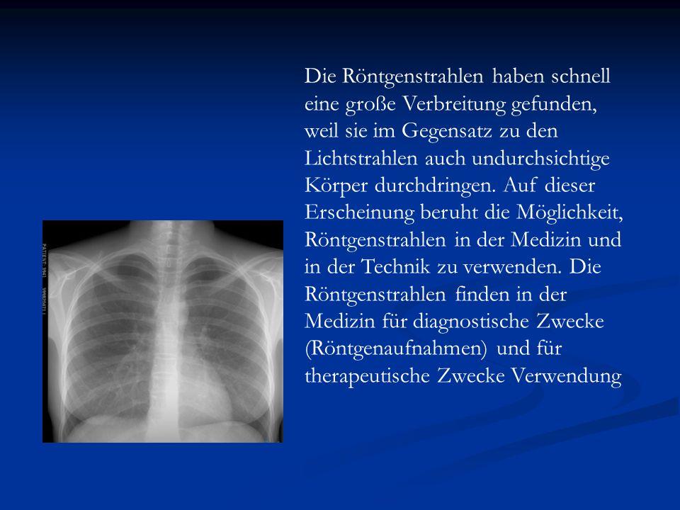 Die Röntgenstrahlen haben schnell eine große Verbreitung gefunden, weil sie im Gegensatz zu den Lichtstrahlen auch undurchsichtige Körper durchdringen.