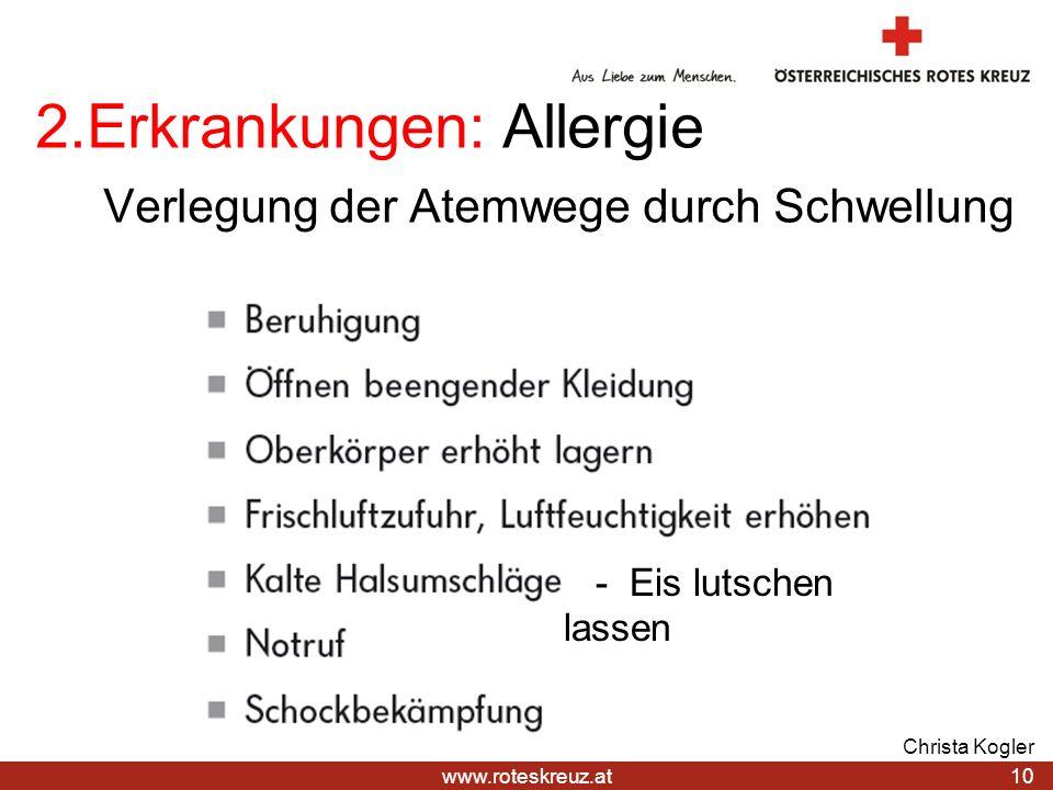 2.Erkrankungen: Allergie Verlegung der Atemwege durch Schwellung