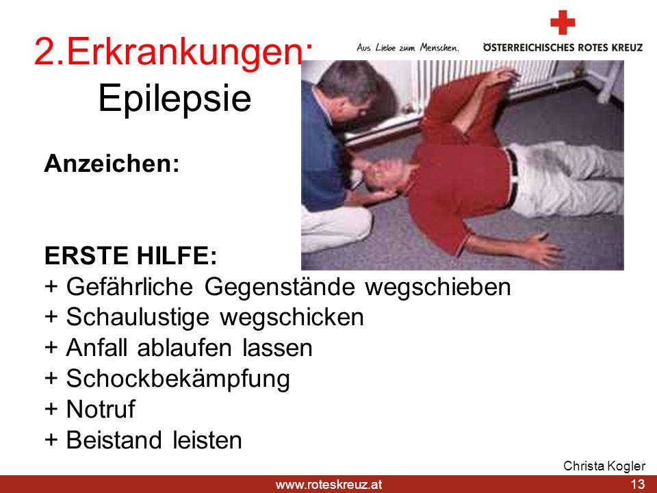 2.Erkrankungen: Epilepsie